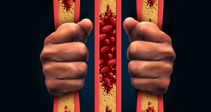 Cholesteroltheorie ongeloofwaardig na mislukte studie
