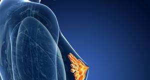 Diagnose borstkanker klopt niet in 20% van de gevallen