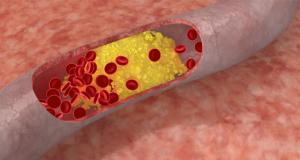 'Slecht' LDL-cholesterol beschermt tegen kanker