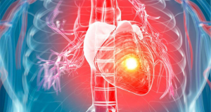 Heart attack victims had normal levels of cholesterol