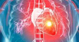 Mensen met een hartaanval hadden normale cholesterolwaarden