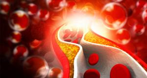 Hoge dosering vitamine D vermindert arteriële stijfheid