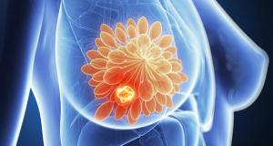 Voedingssupplement NAC remt groei van borstkanker